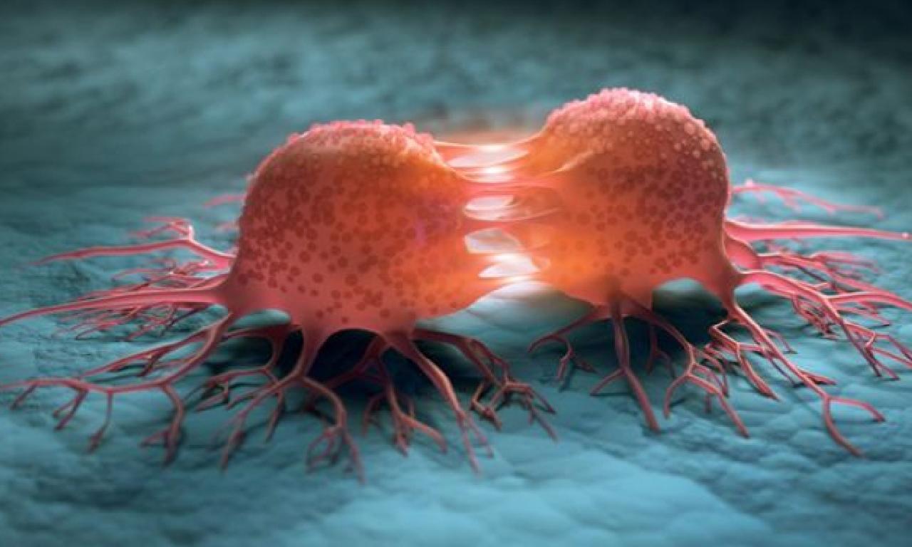 Kanser oluşmadan x yıllar önce belirleme edilebilir
