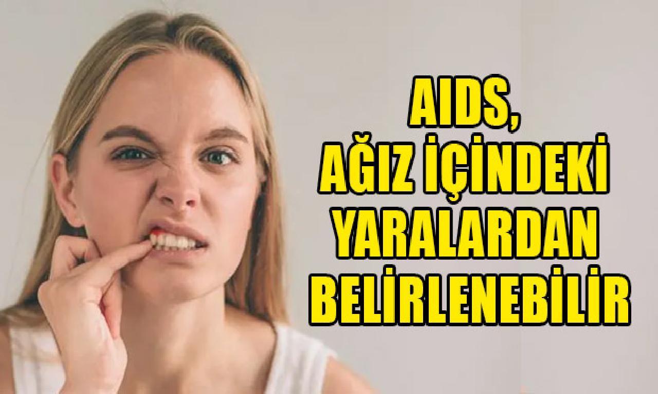 AIDS, ağız içindeki yaralardan belirlenebilir