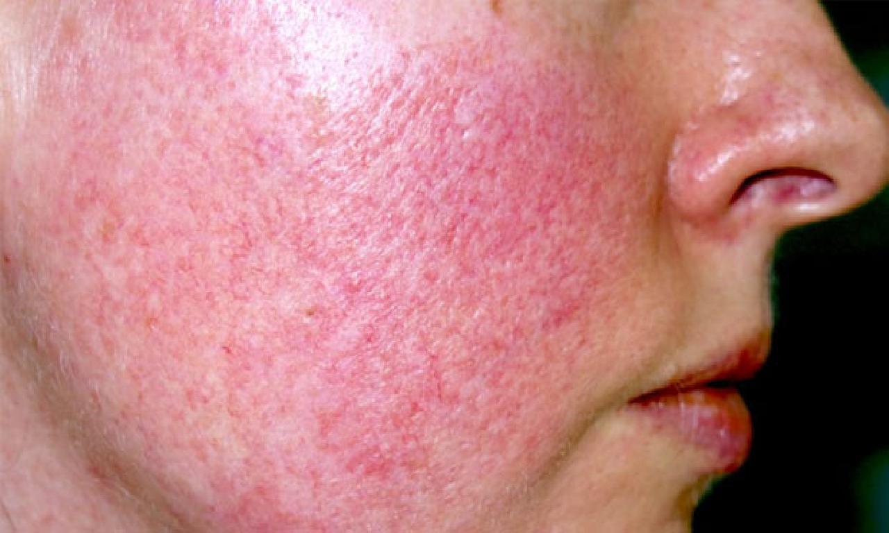 Gül hastalığı (Rozasea) nedir? Gül hastalığı belirtileri nelerdir, nasıl iyileştirme edilir?