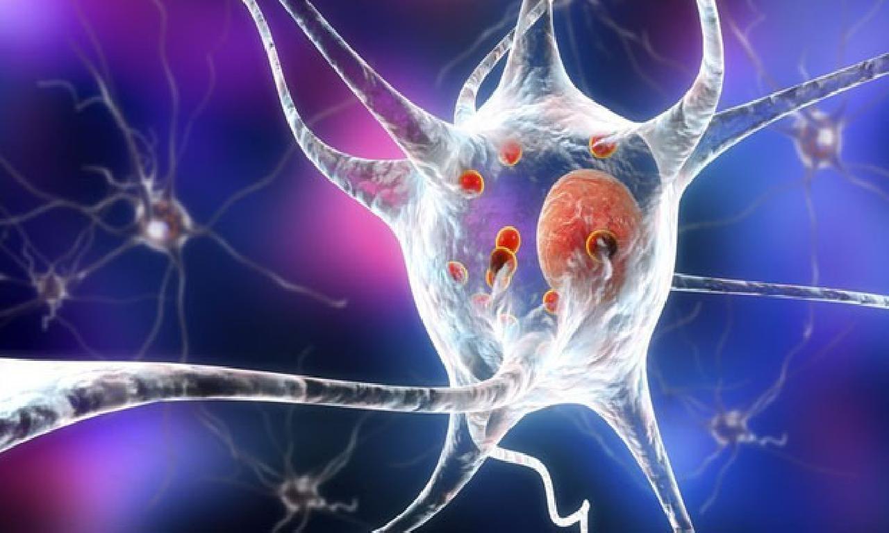 Dünya genelinde 2040'a büyüklüğünde Parkinson hastası sayısının 18 milyona ulaşması bekleniyor