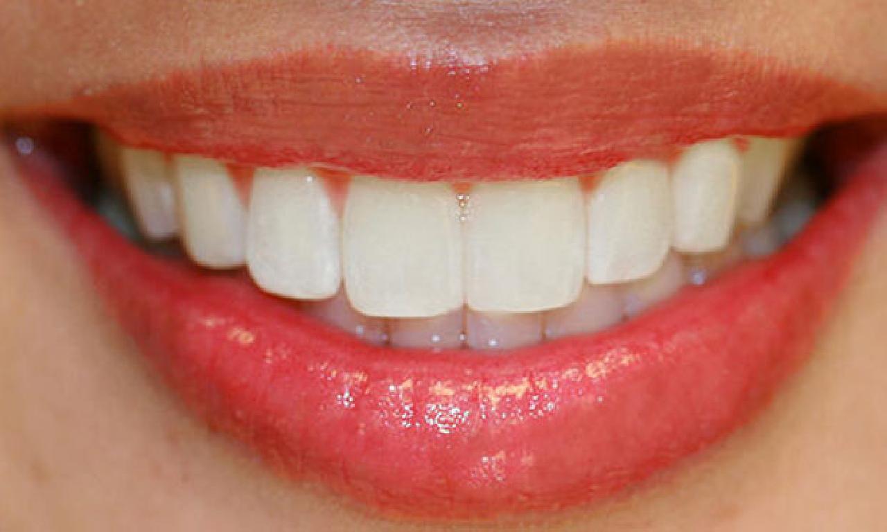 Bu yazın genişlik popüler güzellik uygulaması; ağzın renklendirme