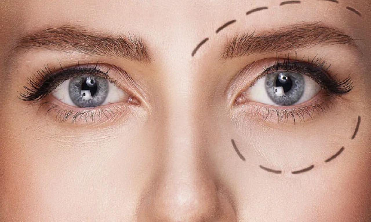 Göz kapağı estetiğiyle henüz genç görünmek mümkün!
