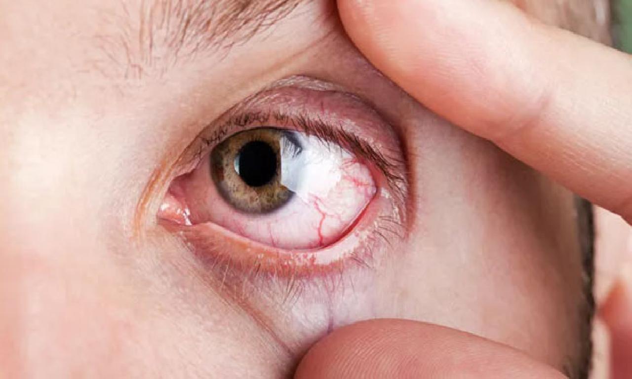 Göz kuruluğu tedavisinde güneş gözlüğü dahi tesirli