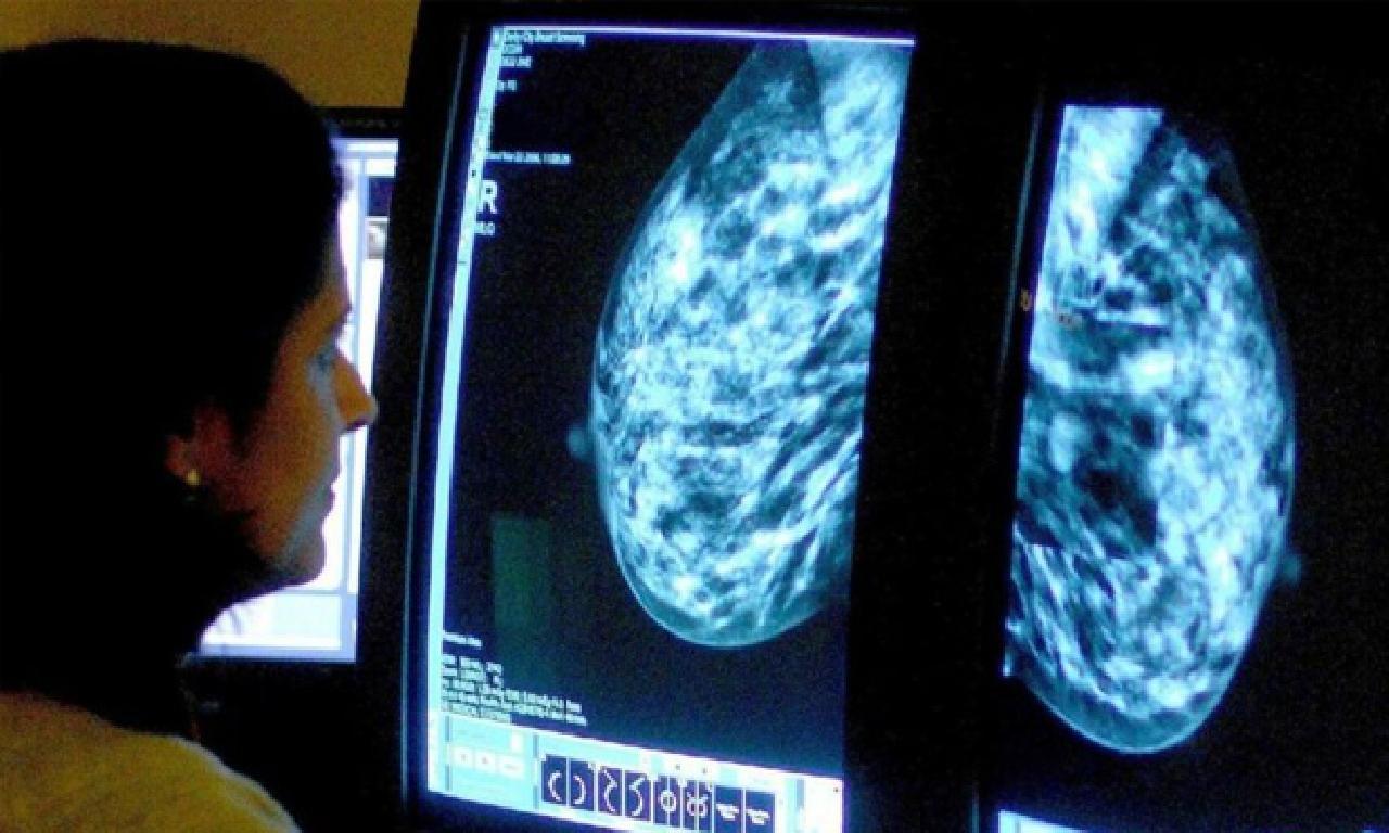 Meme kanseri tedavisinde geçerli Phesgo'ya tasdik çıktı
