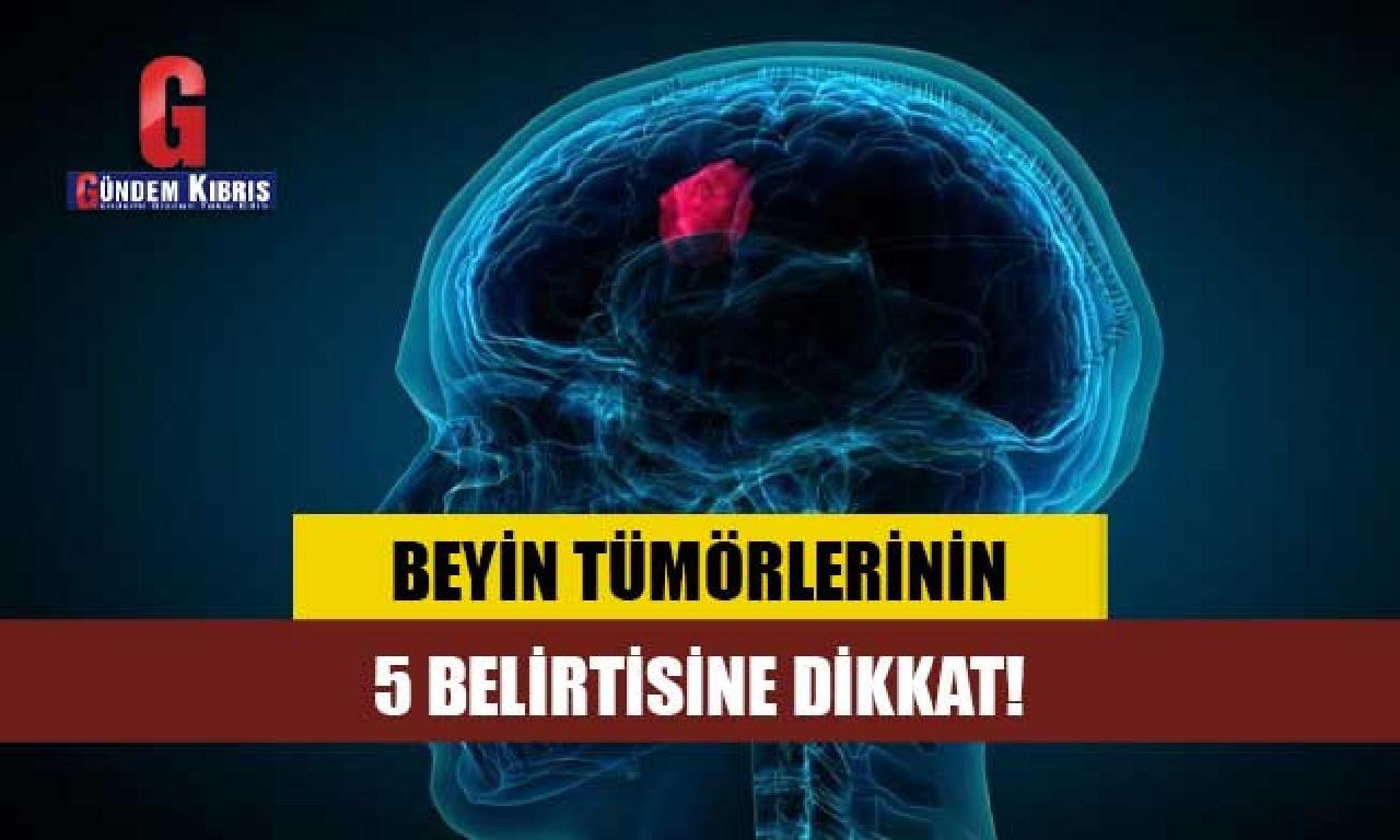 Beyin tümörlerinin 5 belirtisine dikkat!