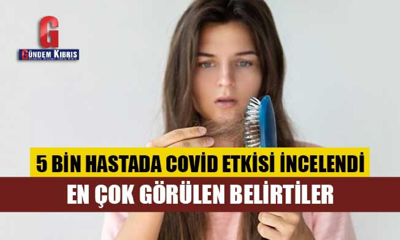 Araştırma sonucu: Corona virüs jimnastik unutkanlık, kadınlarda saç dökülmesi yaptı