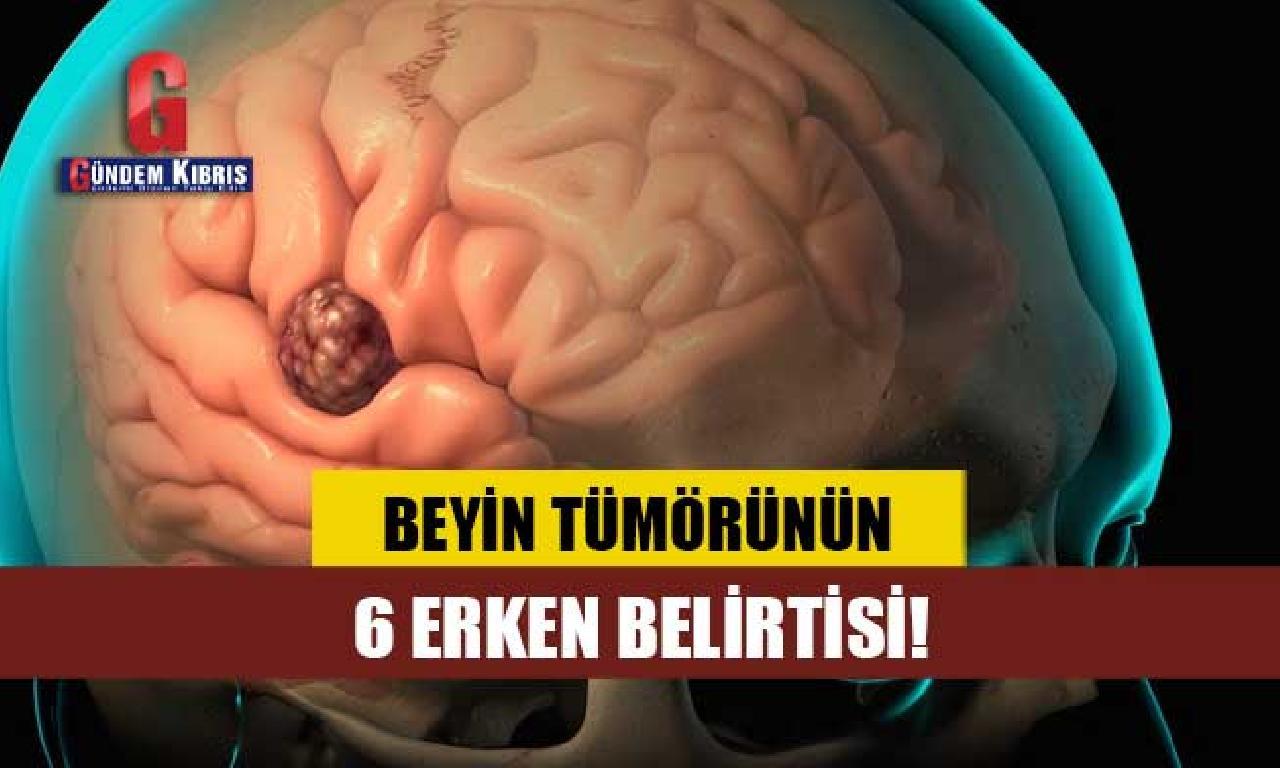 Beyin tümörünün 6 er belirtisi!