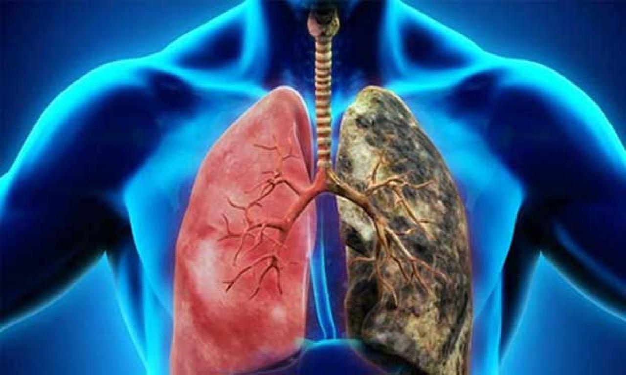 Akciğer Kanserini Doğru Tedavi Planlaması İle Yenmek Mümkün