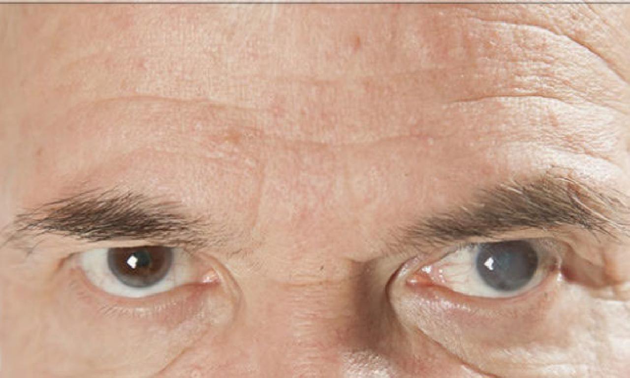 İlerleyen Yaş Gözler dahi Katarakta Sebep Oluyor!